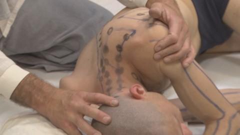 Thai Acupressure Massage Treatment For Tension Headache