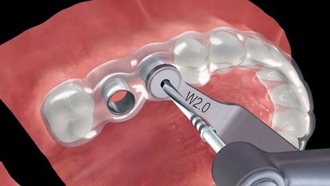 كورس لأطباء الأسنان Dental CAD Design