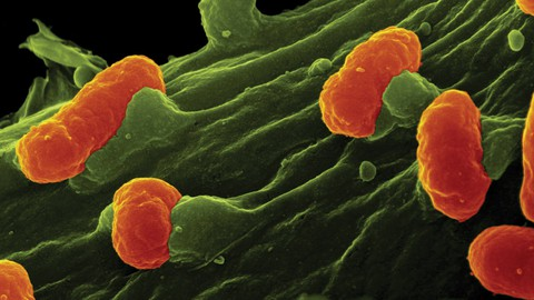 A Very Short Introduction to Medical Bacteriology