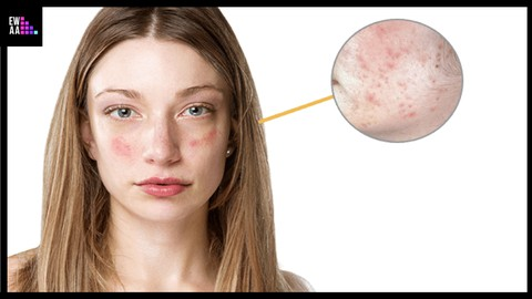 Troubled Skin