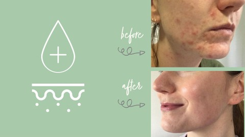 Adult Acne: Skincare for Clear Skin