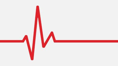 Aim for a Resting Heart Rate Below 60 Beats Per Minute