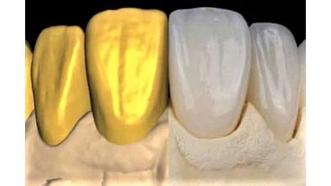 Flujo Digital en odontología y Programa Exocad Básico